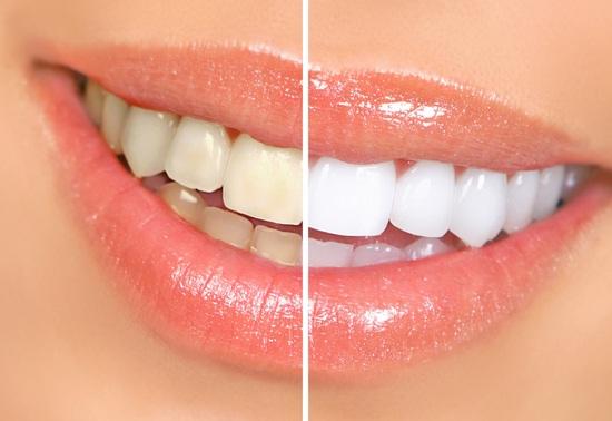 prirodno izbeljivanje zuba
