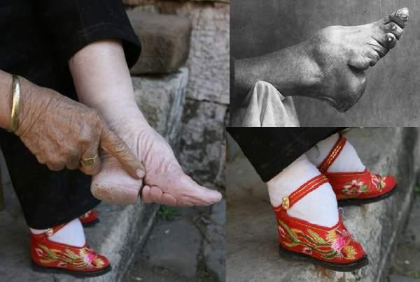 podvezivanje nogu