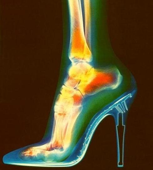 štikle rendgen