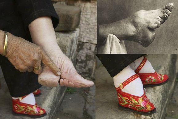lotosovo stopalo